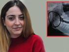 3 Yaşında Bademcik Ameliyat Oldu, Boğazında Unuttukları İğne ile 18 Yıl Yaşadı