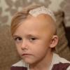 Arkadaşıyla Çarpışan Çocuk Beyin Kanaması Geçirdi