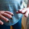 Çocukları ile Bahçede Oynarken Et Yiyen Bakteri Kapan Adamın Parmakları Kesildi