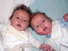 Doğum Lekesi Nefes Borusuna Kadar Yayılınca Boğulma Tehlikesi Geçirdi