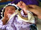 Fransa: 50 Yıldır Kullanılan İlaç 4 Bin 100 Kusurlu Doğuma Yol Açmış Olabilir