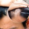 Lazerli Saç Ekimi Tekniği Nedir?