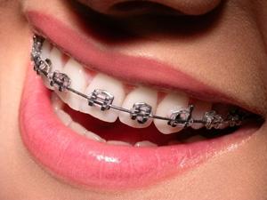 http://www.hastane.com.tr/Images/Article/ortodonti_tedavisinde_son_gelismeler_b.jpg
