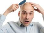 Saç Ekimi İçin En Uygun Zaman Nasıl Belirlenir?