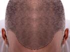 Saç ekimi nedir, saç ekimi nasıl yapılır?