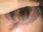 Tıraşsız Saç Ekimi DHI