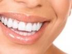 Tükürük Kalitesi, Dişlerde Çürükleri Önlüyor