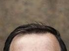 Yara İzi Kalır mı ve Hastanın Kendi Saçı Zarar Görür mü?