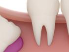 Yirmi Yaş Dişlerini Çektirmeniz Gerekir mi?